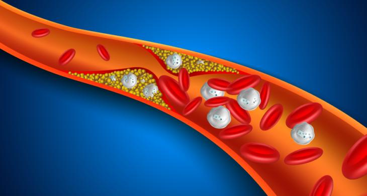 nanoparticles reduce plaques
