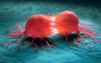 RBP inhibition to treat breast cancer