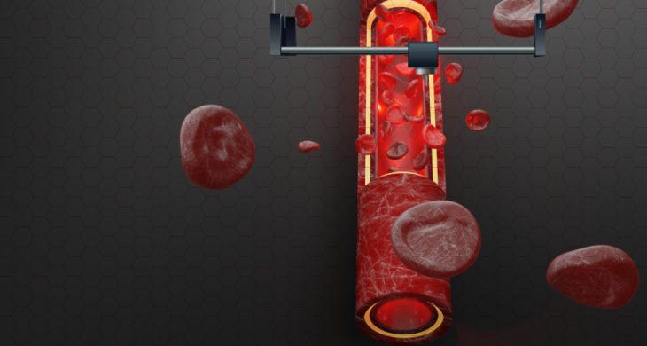 bioprinted blood vessels model human disease